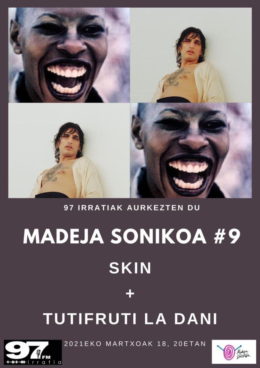 Madeja Sonikoa: #MS9: Skin + La Dani